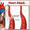 Heart Attack or Myocardial Infarction (MI): Causes, Risk Factors, Symptoms, Treatment