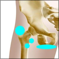 Hip Joint Bursitis
