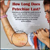 How Long Does Petechiae Last|Home Remedies to Get Rid of Petechiae Fast