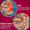 IBS Vs. Colon Cancer: Differences Worth Knowing