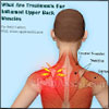 Inflamed Upper Back Muscles or Inflamed Cervical and Thoracic Muscle Attachments: Causes, Symptoms, Diagnosis, Treatment