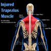 Injured Trapezius Muscle: Causes, Symptoms, Home Remedies