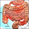 Irritable Bowel Syndrome (IBS): Classification and Types, Pathophysiology, Etiology, Risk Factors, Symptoms, Signs, Treatment, Investigations