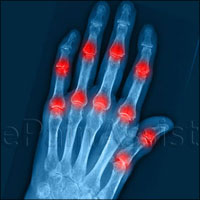 Arthritis or Joint Inflammation