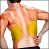 Latissimus Dorsi Pain: Symptoms, Causes, Treatment, Prevention