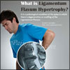 What is Ligamentum Flavum Hypertrophy or Ligamentum Flavum Thickening & How is it Treated?