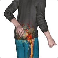 Sciatica Back Pain Relief: Using Epidural Steroid Injection, Precautions, Procedure
