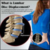 What is Lumbar Disc Displacement: Causes, Symptoms, Treatment, Surgery