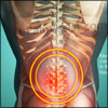 What Can Cause Mechanical Back Pain And How Is It Treated?
