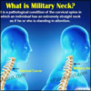 Military Neck: Causes, Symptoms, Treatment, Exercise