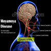 Moyamoya Disease: Stages, Causes, Symptoms, Treatment