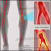 Peripheral Artery Disease: Causes, Symptoms, Treatment, Do's & Don'ts