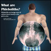Phleboliths: Causes, Symptoms, Treatment, Home Remedies, Prevention, Diagnosis