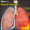 What is Pleural Effusion & How is it Treated?