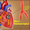 Prinzmetal Angina - Causes, Symptoms, Diagnosis, Treatment