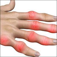 Rheumatoid Arthritis of Hands