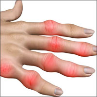 Rheumatoid Arthritis or Chronic Inflammation of Joints