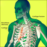 Rib Cartilage Injury or Rib Cartilage Fracture