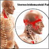 SCM Pain or Sternocleidomastoid Pain: Causes, Symptoms, Treatment, Exercises