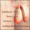 Scrotal Pain or Testicular Pain: Classification, Causes, Risk Factors, Treatment, Prevention