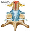 What is Spinal AVM or Spinal Arteriovenous Malformation?