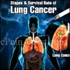 Stages & Survival Rate of Lung Cancer