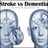 Stroke vs Dementia: Differences Worth Knowing