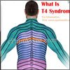 T4 Syndrome: Signs, Symptoms, Causes, Treatment, Recovery