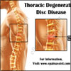 Thoracic Degenerative Disc Disease: Causes, Symptoms, Treatment, Exercises, Prognosis, Physiotherapy