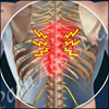 Thoracic Radicular Pain: Causes, Symptoms, Treatment