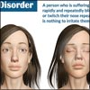 Tic Disorder: Causes, Signs, Symptoms, Treatment, Diagnosis