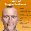 Tongue Problems: Types, Causes, Treatment, Diagnosis