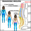 What Causes Transverse Myelitis and How is it Treated?