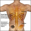 Spinal Cord Stimulator for Relieving Back Pain or Backache
