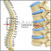 Vertebral Fracture: Treatment, Surgery, Recovery, Rehab, Prevention, Coping