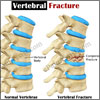 Vertebral Fracture: Causes, Types, Symptoms, Risk Factors, Complications, Diagnosis