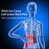What Can Cause Left Lower Back Pain: Symptoms, Treatment