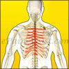 What Can Cause Thoracic Radiculitis and How is it Treated?