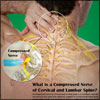 What Happens If You Have Compressed Nerve of the Cervical and Lumbar Spine?