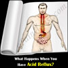 What Happens When You Have Acid Reflux?