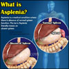 What is Asplenia & How is it Treated?|Causes, Symptoms, Survival Rate of Asplenia