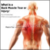 What is Back Muscle Tear or Injury & How is it Treated?