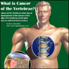 What is Cancer of the Vertebrae, Know its Causes, Symptoms, Treatment