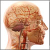 What is Carotid Stenosis or Stenosis of the Carotid Artery & How is it Treated?