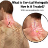 What is Cervical Myelopathy & How is it Treated?