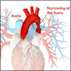 What is Coarctation of the Aorta or Aortic Narrowing & What are its Causes, Symptoms