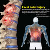 What is Facet Joint Injury, Know its Treatment, Recovery Period