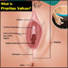 What is Pruritus Vulvae, Know the Causes & Ways to Prevent Itchy Vulva