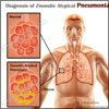 What is Zoonotic Atypical Pneumonia, Know its Causes, Symptoms, Treatment, Types. Prognosis, Epidemiology