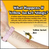 What Happens If Yellow Jacket Stings & 6 Home Remedies For It